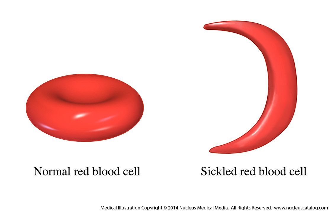 african american w is first patient cured of sickle cell sickle cell disease medical illustration by nucleus medical media
