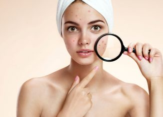 find treatment acne
