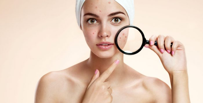 find treatment acne oliy skin